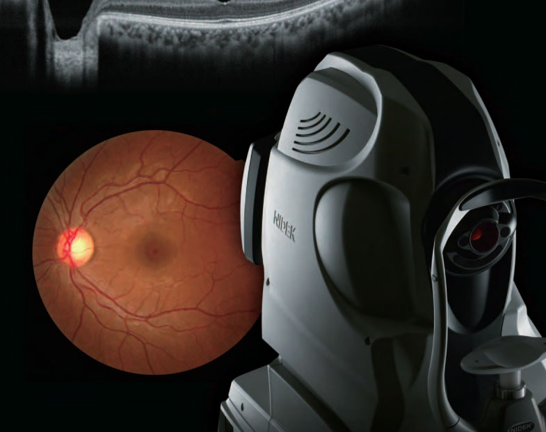 Nidek-RetinaDuo-Retinal-Camera-&-OCT-scanner